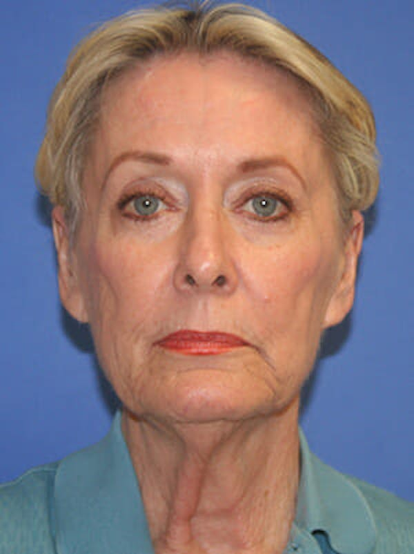 Facelift Gallery - Patient 9605815 - Image 1