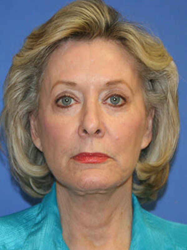 Facelift Gallery - Patient 9605815 - Image 2