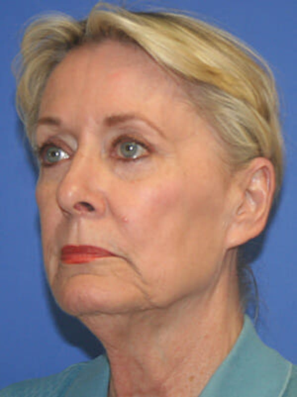 Facelift Gallery - Patient 9605815 - Image 3