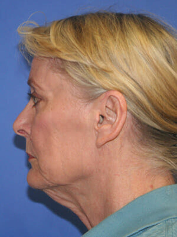 Facelift Gallery - Patient 9605815 - Image 5