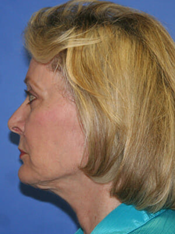 Facelift Gallery - Patient 9605815 - Image 6