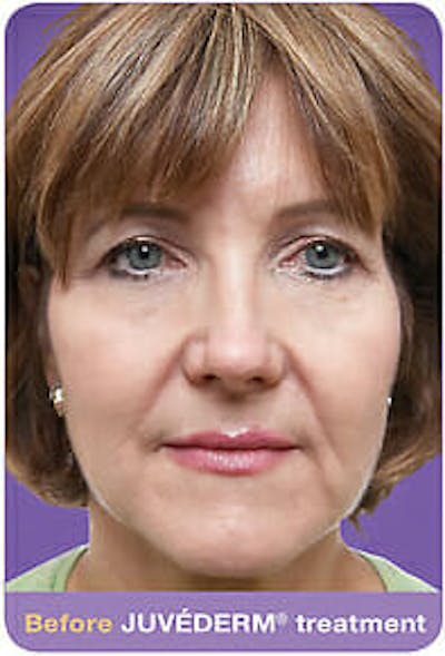 Juvederm Gallery - Patient 9605817 - Image 1