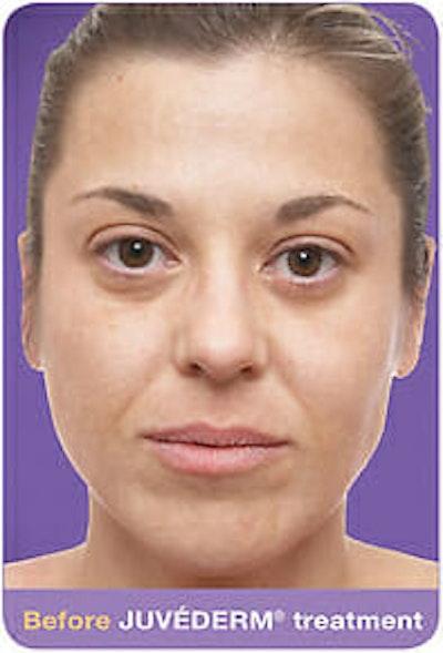 Juvederm Gallery - Patient 9605818 - Image 1