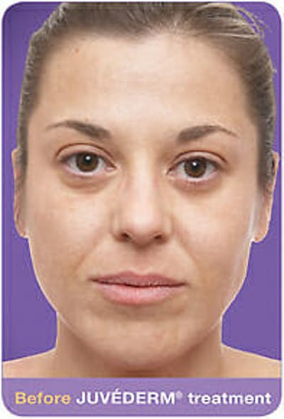 Juvederm Gallery - Patient 9605818 - Image 1