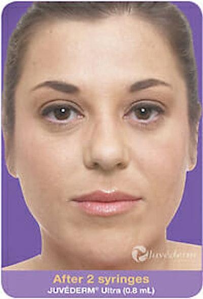 Juvederm Gallery - Patient 9605818 - Image 2