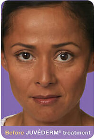 Juvederm Gallery - Patient 9605824 - Image 1