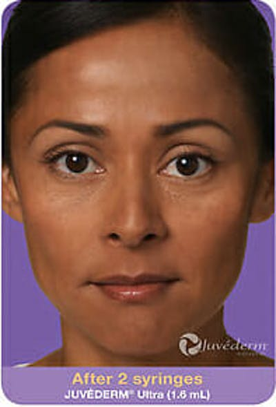 Juvederm Gallery - Patient 9605824 - Image 2