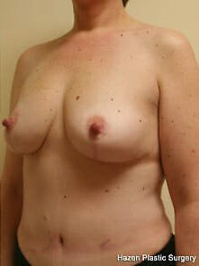 Mastopexy Gallery - Patient 9605831 - Image 4