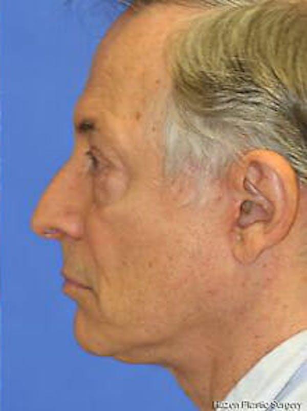 Facelift Gallery - Patient 9605834 - Image 6