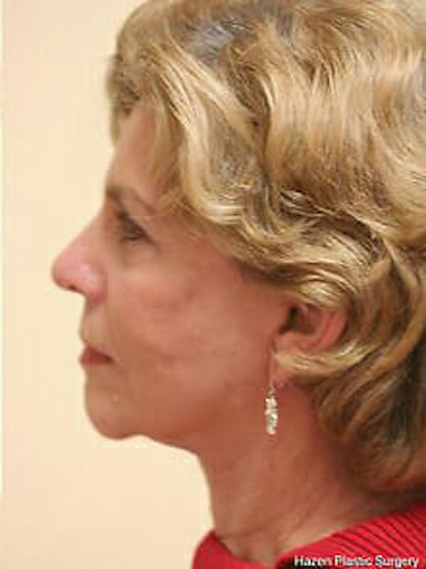 Facelift Gallery - Patient 9605838 - Image 6