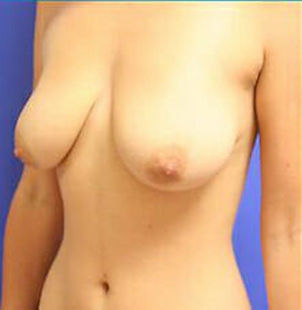 Mastopexy Gallery - Patient 9605842 - Image 3