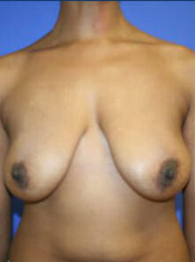 Mastopexy Gallery - Patient 9605844 - Image 1