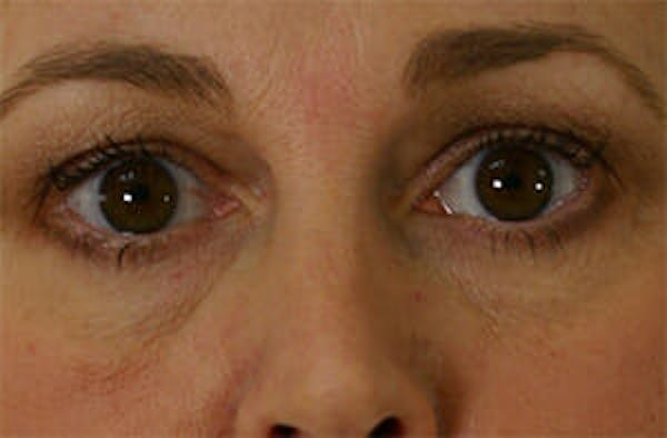 Eye Lift Gallery - Patient 9605847 - Image 1