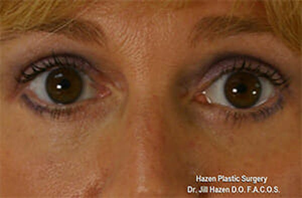 Eye Lift Gallery - Patient 9605847 - Image 2