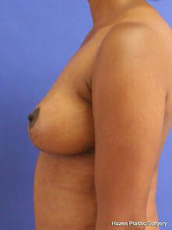 Mastopexy Gallery - Patient 9605844 - Image 6