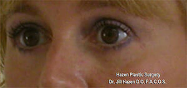 Eye Lift Gallery - Patient 9605847 - Image 4