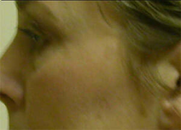 Eye Lift Gallery - Patient 9605847 - Image 5