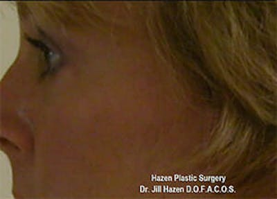 Eye Lift Gallery - Patient 9605847 - Image 6