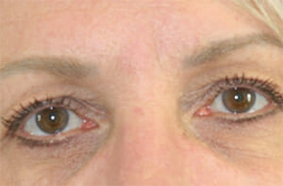 Eye Lift Gallery - Patient 9605848 - Image 1