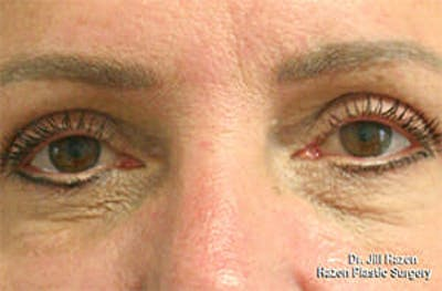 Eye Lift Gallery - Patient 9605848 - Image 2