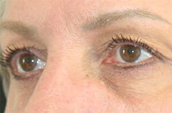 Eye Lift Gallery - Patient 9605848 - Image 3