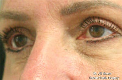 Eye Lift Gallery - Patient 9605848 - Image 4
