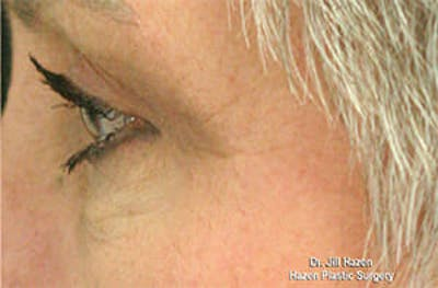 Eye Lift Gallery - Patient 9605848 - Image 6
