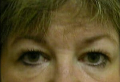 Eye Lift Gallery - Patient 9605853 - Image 1