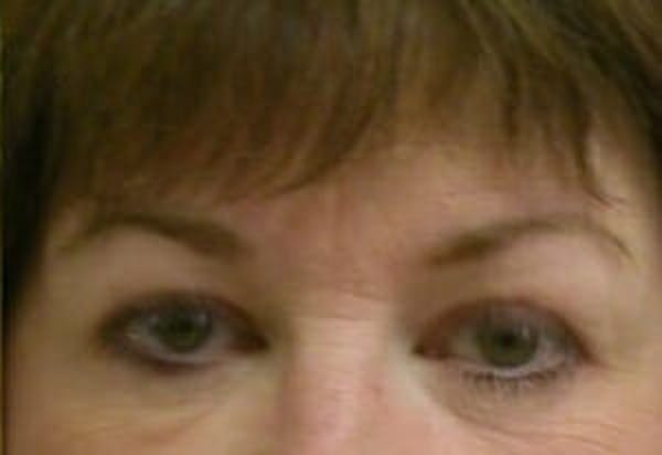 Eye Lift Gallery - Patient 9605853 - Image 2