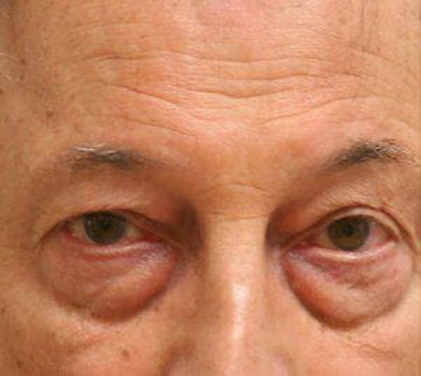 Eye Lift Gallery - Patient 9605854 - Image 1
