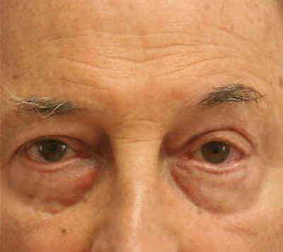 Eye Lift Gallery - Patient 9605854 - Image 2