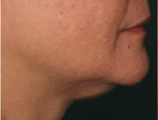 Ultherapy Gallery - Patient 9605858 - Image 1