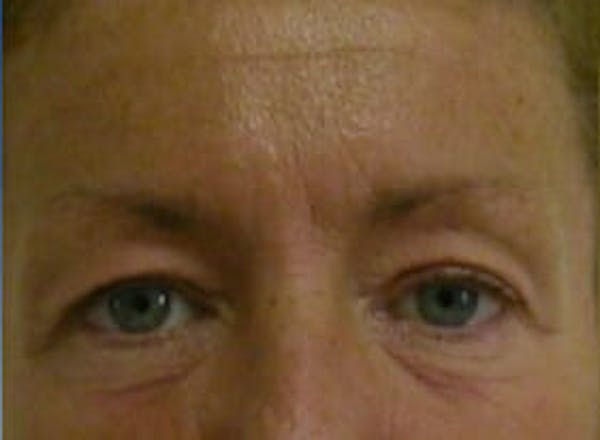 Eye Lift Gallery - Patient 9605859 - Image 1