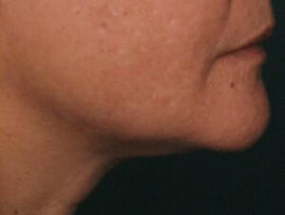 Ultherapy Gallery - Patient 9605858 - Image 2