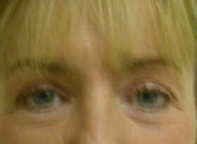 Eye Lift Gallery - Patient 9605859 - Image 2