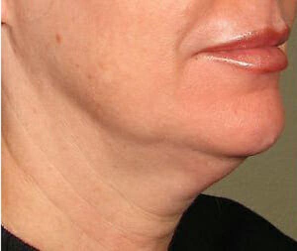 Ultherapy Gallery - Patient 9605861 - Image 1