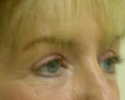 Eye Lift Gallery - Patient 9605859 - Image 4