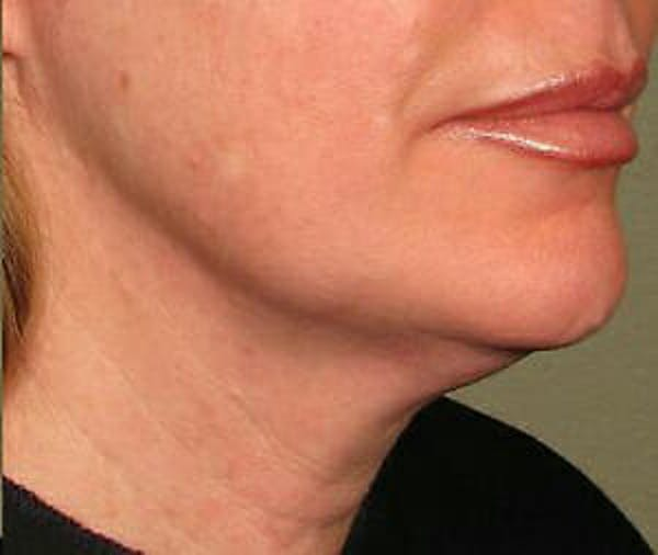 Ultherapy Gallery - Patient 9605861 - Image 2