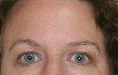 Eye Lift Gallery - Patient 9605863 - Image 1