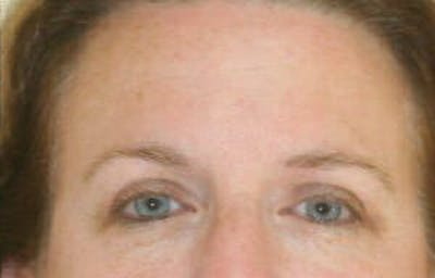 Eye Lift Gallery - Patient 9605863 - Image 2