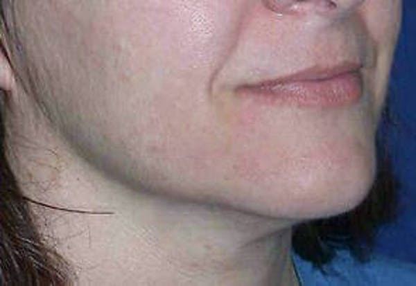 Ultherapy Gallery - Patient 9605862 - Image 2
