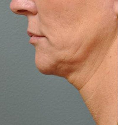Ultherapy Gallery - Patient 9605864 - Image 1