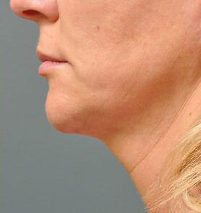 Ultherapy Gallery - Patient 9605864 - Image 2