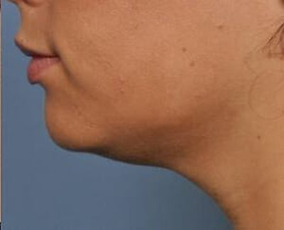 Ultherapy Gallery - Patient 9605865 - Image 2