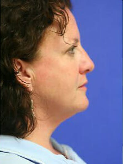 Ultherapy Gallery - Patient 9605866 - Image 6