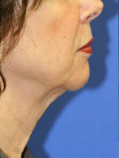 Ultherapy Gallery - Patient 9605867 - Image 2