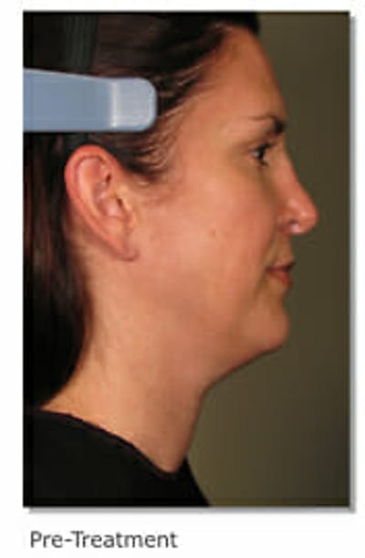 Ultherapy Gallery - Patient 9605869 - Image 1