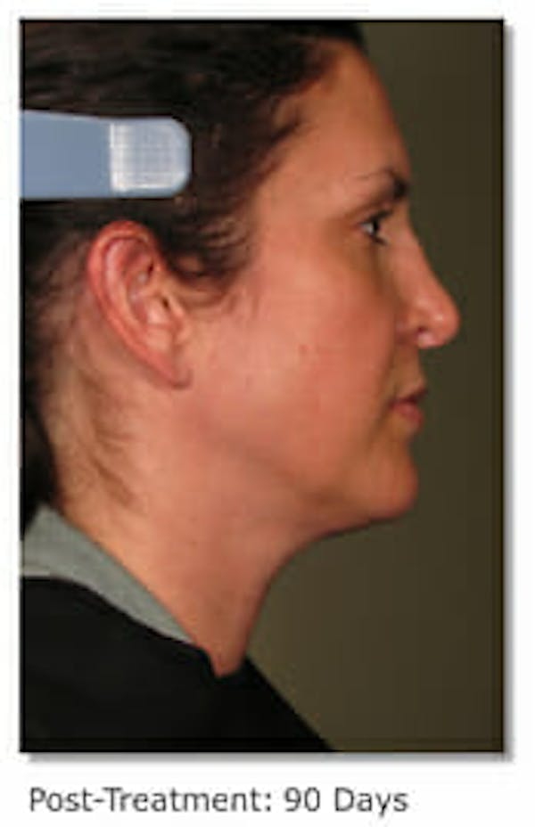 Ultherapy Gallery - Patient 9605869 - Image 2