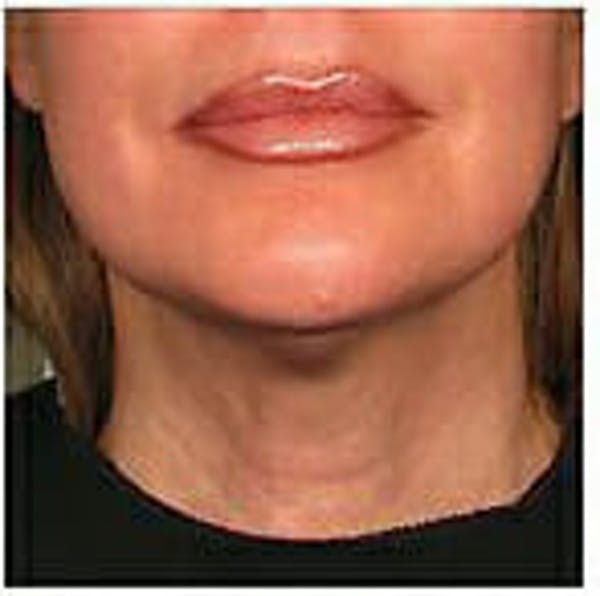 Ultherapy Gallery - Patient 9605870 - Image 2