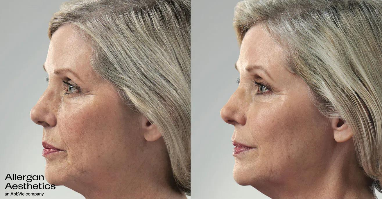 Hazen Plastic Surgery and Medspa